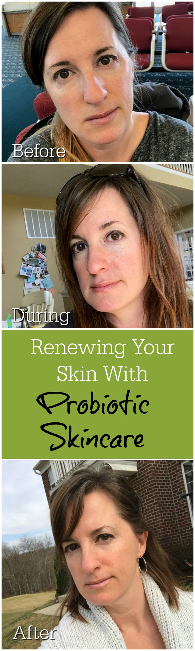 Renewing Your Skin With Probiotic Skincare