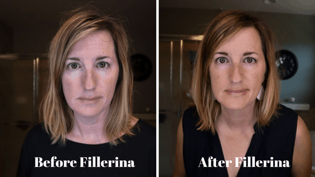 Before and After photos from the Fillerina Plumping 932 treatment